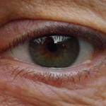 Optiker skulle kunna hitta grön starr i tid
