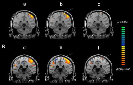 Figur 3 Funktionell MRI