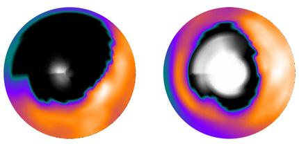 Myocardscintigrafi-bild som visar att även skadade områden i hjärtat efter en hjärtinfarkt kan återhämta sig.