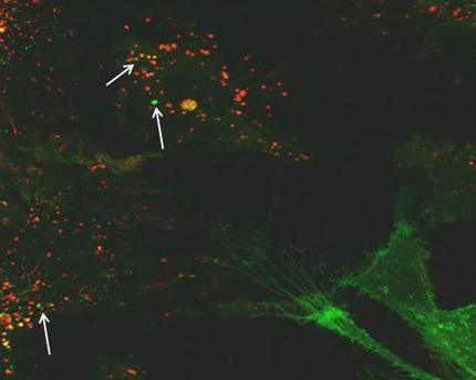 vesikler i cancerceller