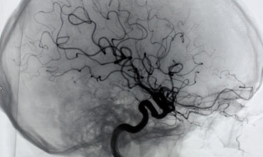 Kontraströntgen av hjärnans blodkärl