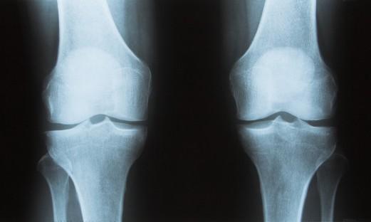 Röntgenbild knä