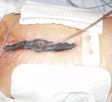 VAC-svampen används vid infekterade sår efter en hjärtoperation