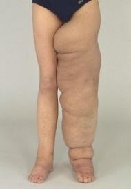 Lymfödempatient före operation, vänsterben kraftigt svullet