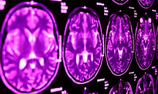 Magnetröntgenbild hjärnan