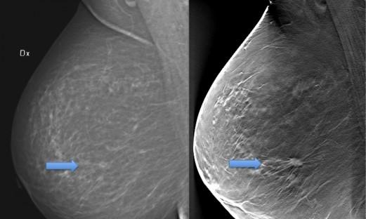 vänster bröst undersökt med mammografi, höger bröst med tomosyntes. Tumör synlig endast med tomosyntes