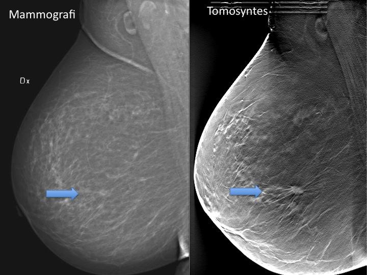 cancer i bröstet