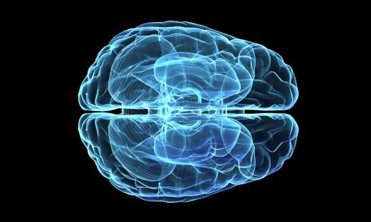 Röntgenbild av hjärna sedd uppifrån