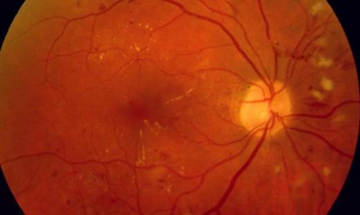 Ögonbottenbild av näthinna.