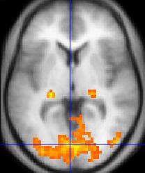 Funktionell MR-bild av hjärnan