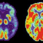 PET-bild av en hjärna hos en patient med Alzheimers sjukdom till vänster och en frisk hjärna till höger