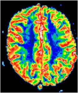 Blodflödesfördelning i normal hjärna