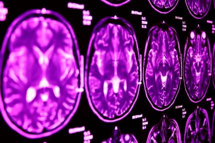 magnetkamerabild av hjärnan