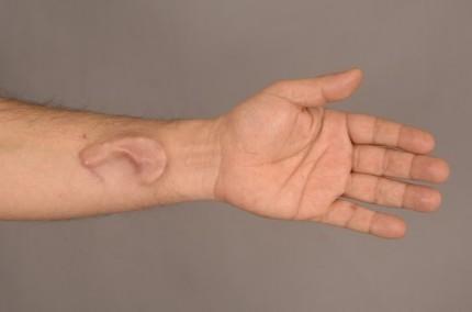 brosköronskelett inopererat på undersidan av armen