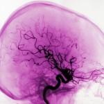 blodflödet i hjärnan