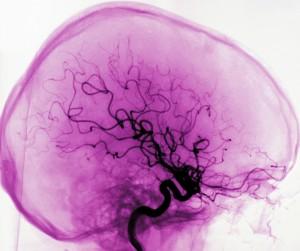 blodkärl i hjärnan