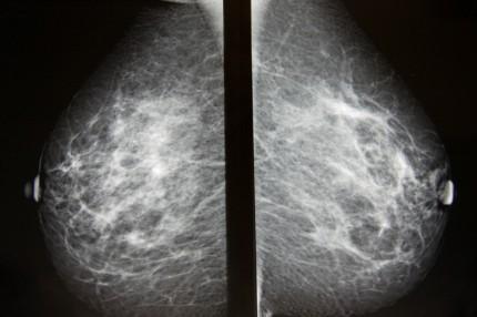mammografibild av bröst