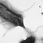 Heliobacter pylori med flageller