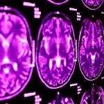 tvärsnitt hjärna med magnetkamera