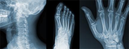Röntgenbilder på nacke fot och hand