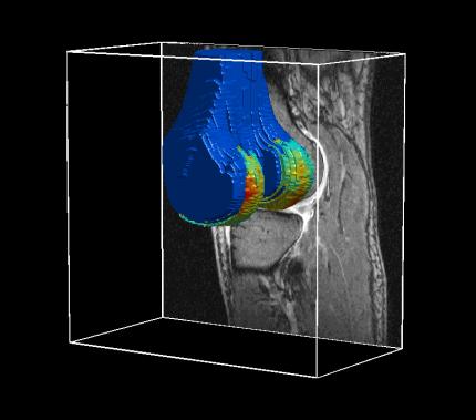 tredimensionell bild av brosk i knä med MR-kamera
