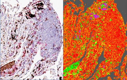 celler från KOL-lunga i mikroskop
