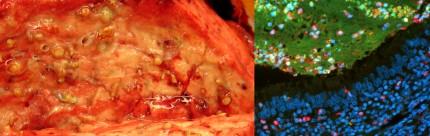 lunga vid cystisk fibros