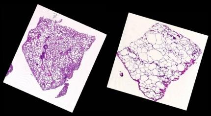 hål i KOL-lunga - emfysem