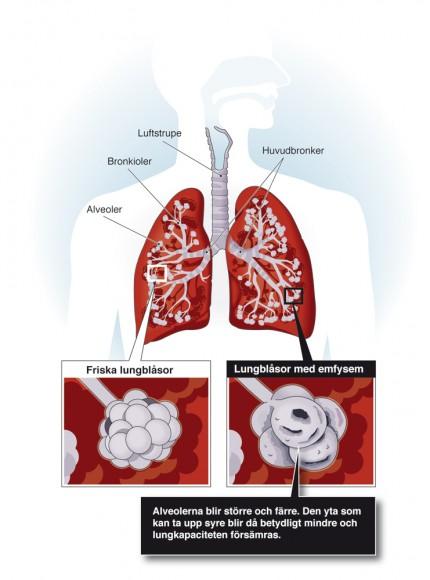lungor angripna av KOL