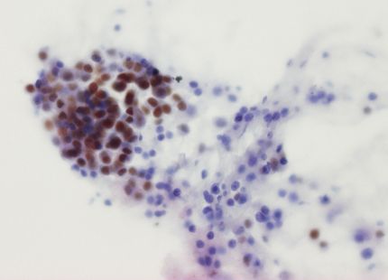 östrogenpositiva bröstcancerceller från finnålspunktion
