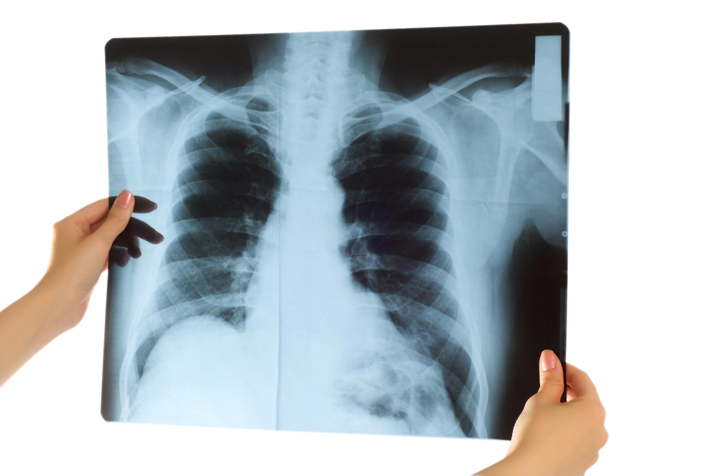 små proppar i lungorna