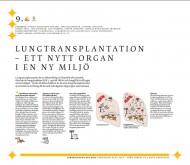 Lungtransplantation - ett nytt organ i en ny miljö
