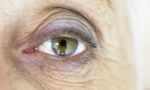 aeldre kvinnas oega