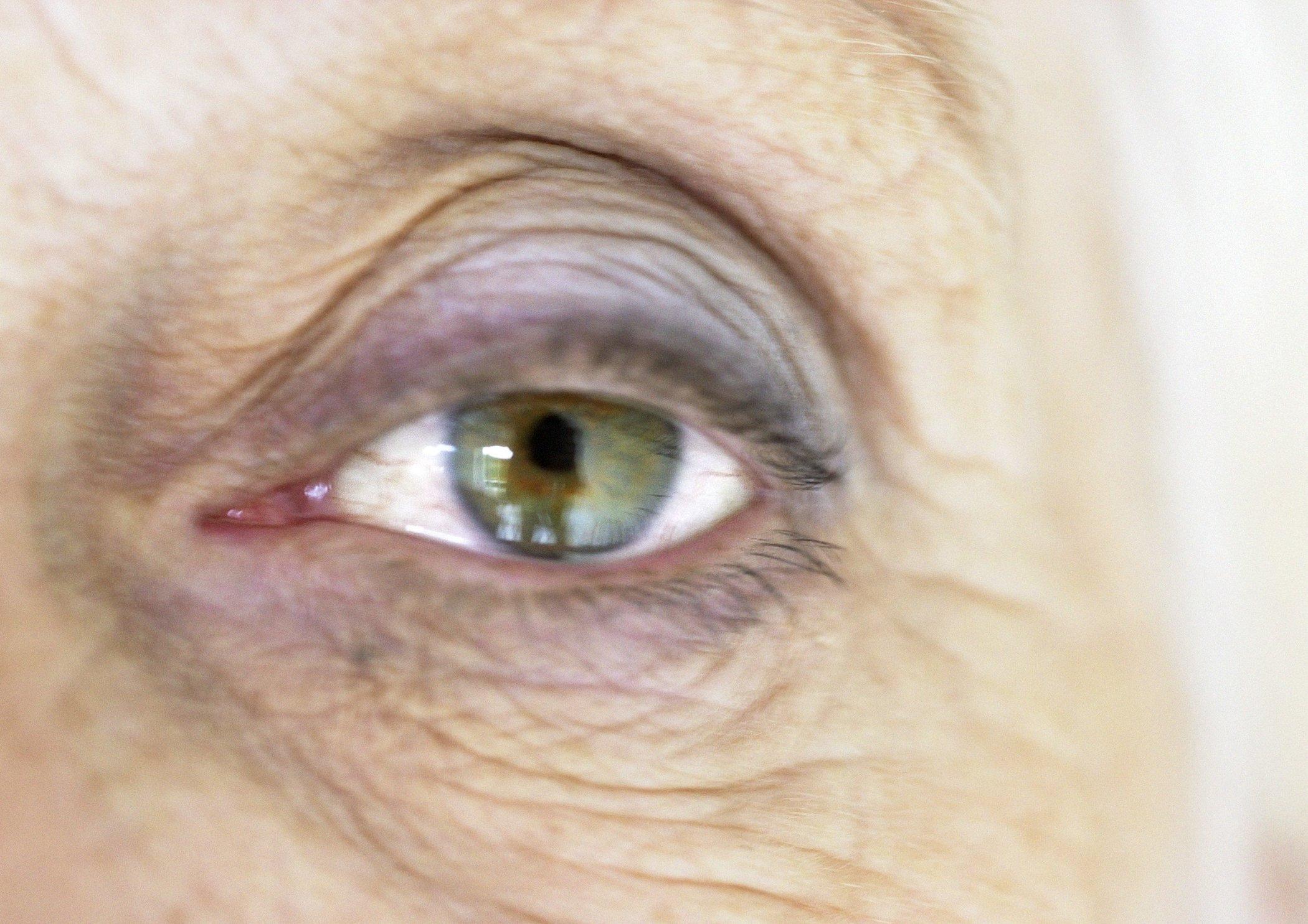högt tryck ögon