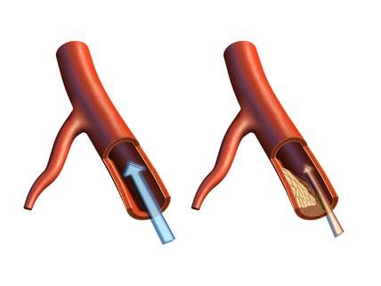 bild av blodkärl i genomskärning