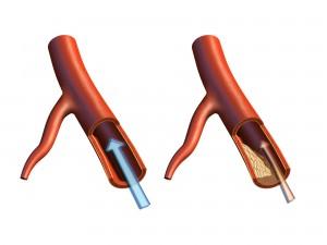 blodkaerl rent respektive aaderforkalkat