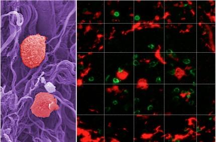 vita blodkroppar i lungvävnaden hos en KOL-patient