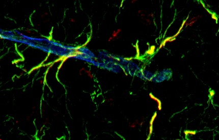 astrocyt och blodkärl