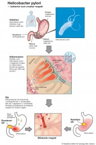 magsårsbakterie behandling