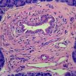 Mikroskopibild bukspottkörtel