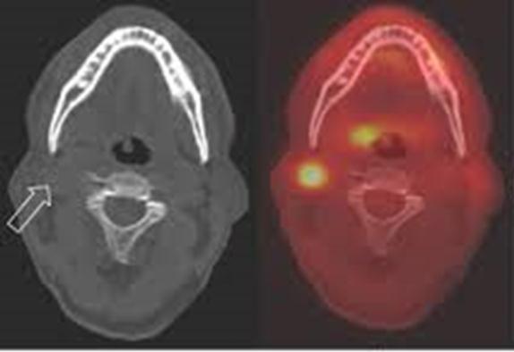 biverkningar strålbehandling hals
