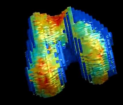 3D-bild över knäleden