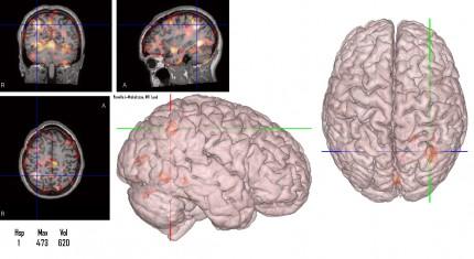 Bild på hjärnan som visar var epilepsin är mest aktiv