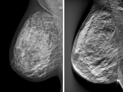 brösttomosyntes