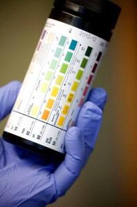 test för urinvägsinfektion hemma