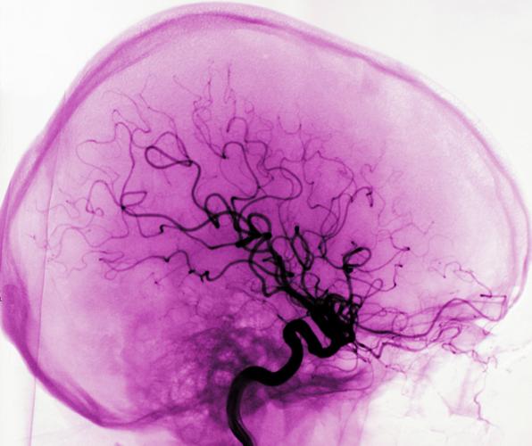 syrebrist i hjärnan symptom