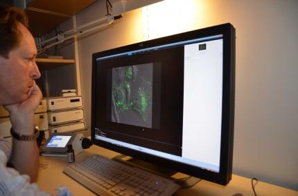 Mattias tittar på exosomer