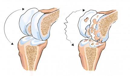 artros i knät