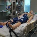 Nya forskningsrön ifrågasätter behandlingsmetod vid hjärtstillestånd