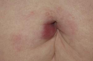 Naveln är ett av de ställen där man kan råka ut för fästingbett. Bilden visar en ringformad hudrodnad orsakad av borreliabakterier, så kallad erythema migrans. Foto: Katharina Ornstein